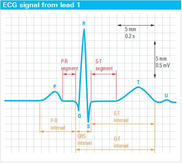 Rys. 1. Sygnał EKG powtarza się zgodnie z rytmem serca. Zaczyna się od załamka P (początku cyklu), następnie występuje zespół QRS, a kończy się załamkiem T.