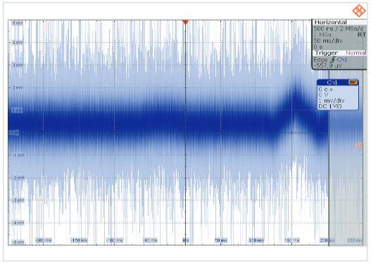 Rys. 3. Zarejestrowany sygnał EKG z ustawieniami Autoset