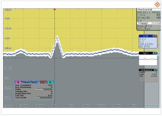 Rys. 4. Zarejestrowany sygnał EKG. Skala 600 µV/div, tryb HD test z maską.