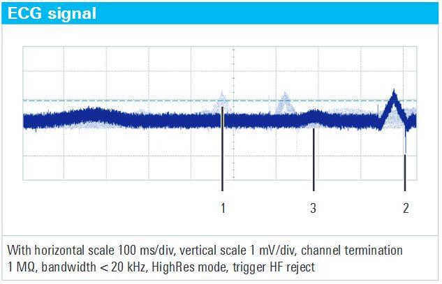 Rys. 5. Sygnał EKG na konkurencyjnym oscyloskopie. Rozdzielczość pozioma 100 ms/div, pionowa 1 mV/div, terminacja kanału 1 MΩ, pasmo < 20 kHz, tryb HighRes, filtracja wysokich częstotliwości przed wyzwalaniem.